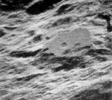 Tento kráter oko obyčejného smrtelníka nemůže spatřit jinak než na fotografii. Kráter King totiž leží na odvrácené straně Měsíce (5,5° s. š., 120,5° z. d.)